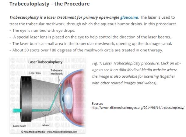 http://www.alilamedicalimages.org/2014/06/14/trabeculoplasty/